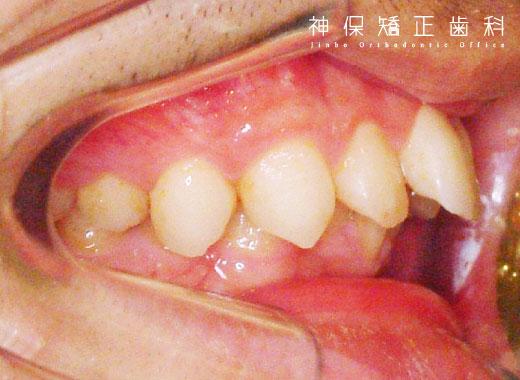 大人 上顎前突症 症状