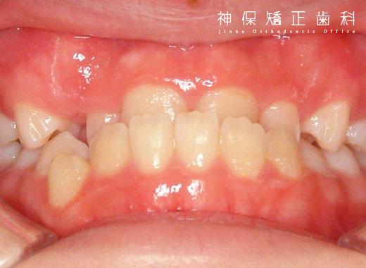 大人 下顎前突症 症状