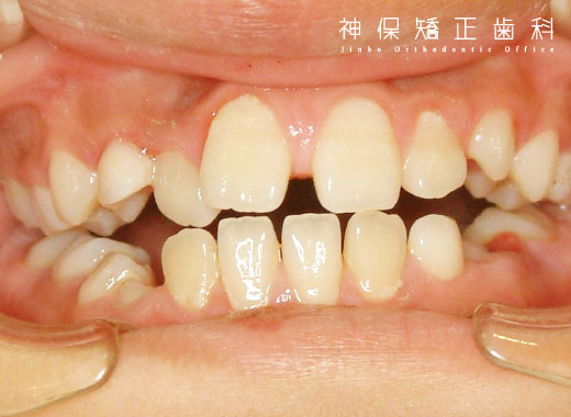 大人 空隙歯列 症状