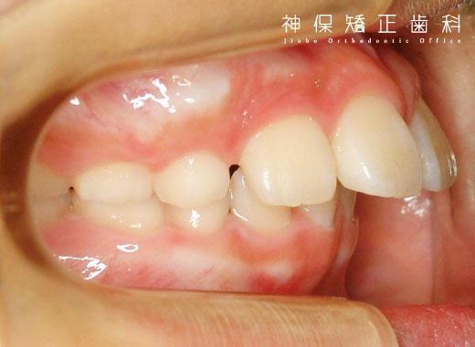 子ども 上顎前突症 症状