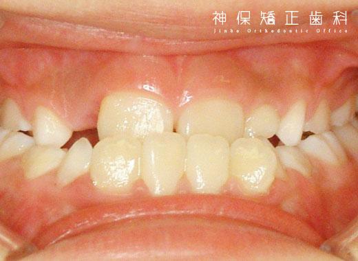 子ども 下顎前突症 症状