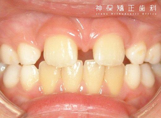 子ども 空隙歯列 症状