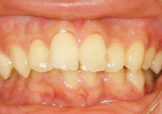 大人の上顎前突症