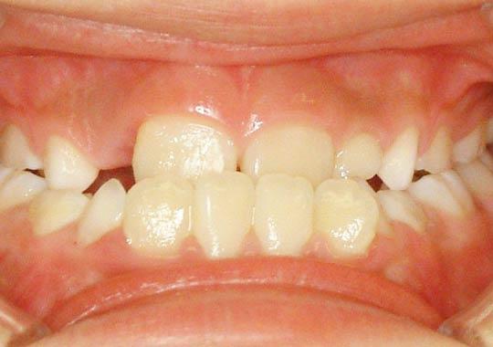 子どもの下顎前突症