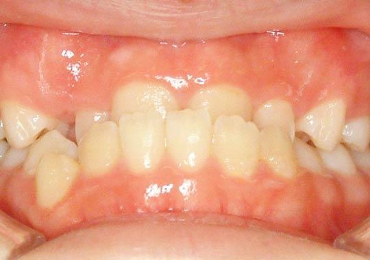 大人の下顎前突症